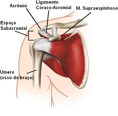 Optima Fisioterapia Síndrome Do Impacto Do Ombro